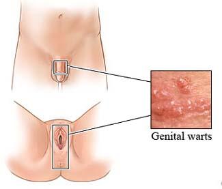 genital-warts